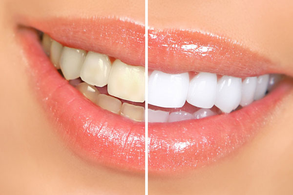 Cyprus Teeth Whitening
